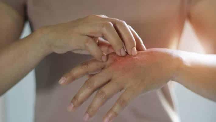 Peau sèche et ménopause : que faire ?