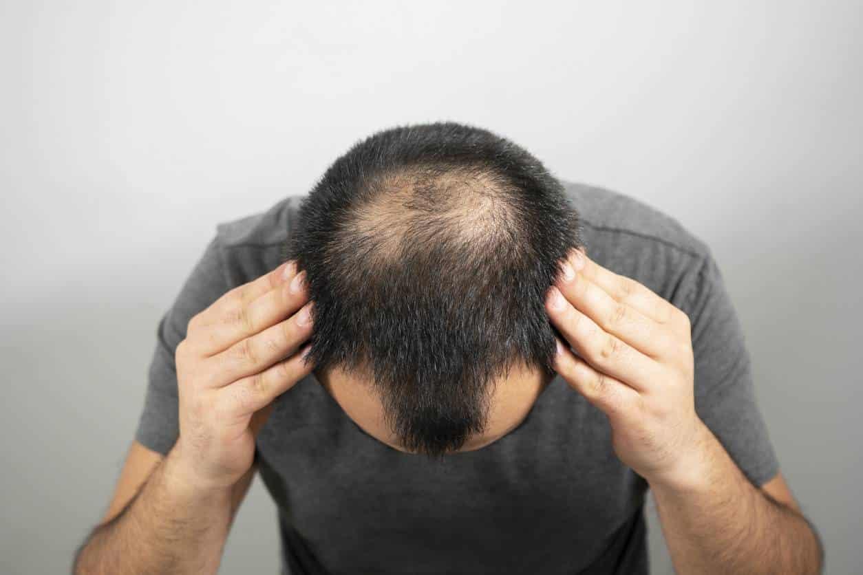 greffe des cheveux calvitie